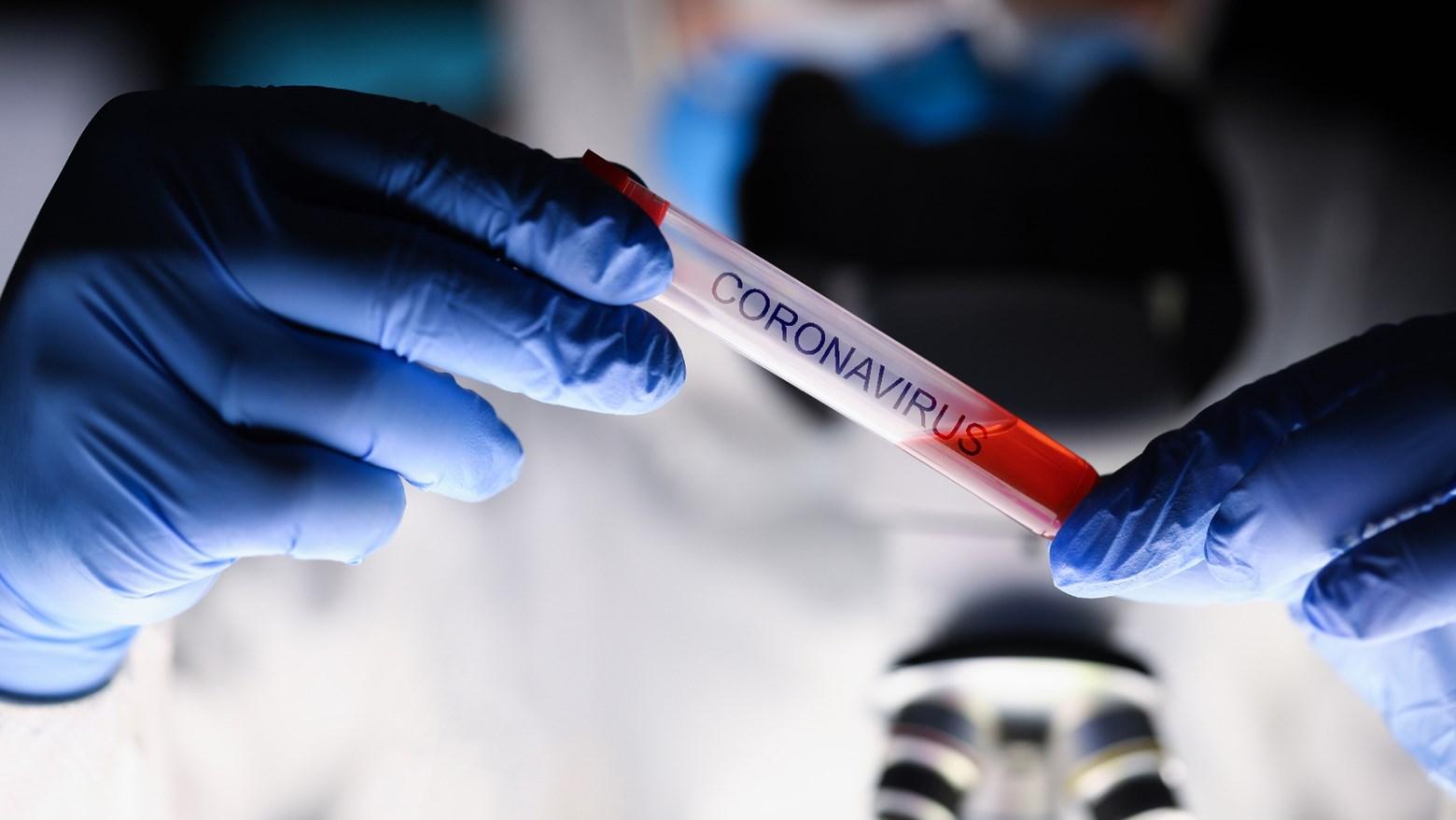 Bolovanje liječnika zbog kontakta s pacijentom inficiranim korona virusom -  Hrvatska liječnička komora